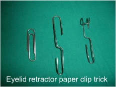 Making an eyelid retractor from a paperclip, by Dr Nicola Freeman